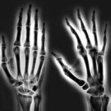 Human hand. Illustration Stock Photos