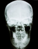 Human head x-ray film Stock Images