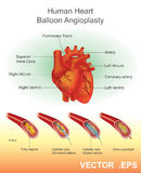 Human Heart Balloon Angioplasty. Royalty Free Stock Images