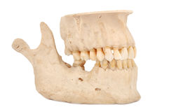 Human jaw. On a white background royalty free stock photos