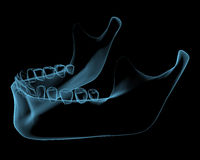 Human jaw. X-ray blue transparent isolated on black Royalty Free Stock Photography