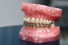 Human jaw or teeth model with metal wired dental braces Stock Photo