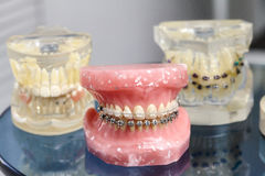 Human jaw or teeth model with metal wired dental braces Royalty Free Stock Photography