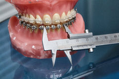 Human jaw or teeth model with metal wired dental braces Stock Photos
