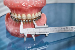 Human jaw or teeth model with metal wired dental braces Royalty Free Stock Image