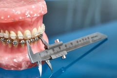 Human jaw or teeth model with metal wired dental braces. And vernier caliper closeup Royalty Free Stock Photography