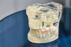 Human jaw or teeth orthodontic dental model Royalty Free Stock Image