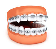 Human jaw tooth and brackets. 3d illustration Royalty Free Stock Photo
