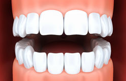 Human jaw and white tooth. 3d illustration Royalty Free Stock Images