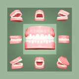 Human jaws with teeth in different projections. Teeth whitening. Human jaws with teeth in different projections Royalty Free Stock Images