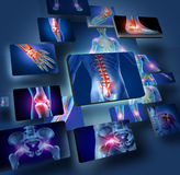 Human Joints Concept. With the skeleton anatomy of the body with a group of panels of sore joints glowing as a pain and injury or arthritis illness symbol for Royalty Free Stock Photography