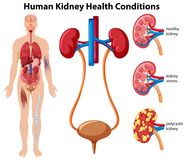 Human Kidney Health Conditions stock illustration