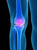 Human knee anatomy. With femur, tibia and fibula bones under X-rays isolated on black Stock Image