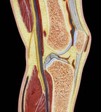 Human Knee Joint Color Silo. Cross section of internal structures of human knee silhouetted in black Stock Photo