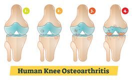 Human Knee Osteoarthritis diagram illustration. Human Knee Osteoarthritis vector diagram illustration Royalty Free Stock Images