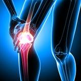 Human knee pain Stock Image