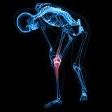 Human knee pain Royalty Free Stock Photos