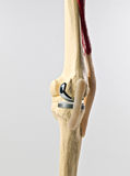 Human knee repacement Stock Photo