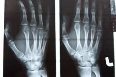 Human left hand xray image Royalty Free Stock Photo