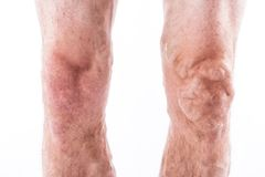 People with varicose veins of the lower extremities and venous t Royalty Free Stock Image