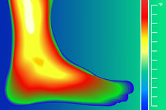Human Leg. Infrared Thermograph with temperature scale. Infrared energy scan Actual temperature. Royalty Free Stock Image