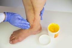 Human leg with postoperative scar of cardiac surgery Stock Images