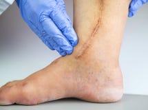 Human leg with postoperative scar of cardiac surgery Royalty Free Stock Photos