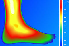 Human Leg. Thermal imager with temperature scale. Stock Image