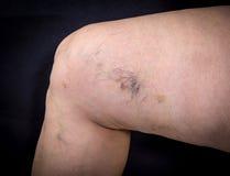 Human leg with varicose veins Royalty Free Stock Photography