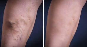 Human leg with varicose veins Stock Image