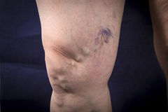 Human leg with varicose veins Royalty Free Stock Photo