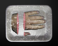 Human limb in a plastic container. On a black background Stock Image