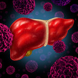 Human Liver Cancer. Organ as a medical symbol of a malignant tumor red cell disease as a cancerous growth spreading through the digestive system by alcohol and Royalty Free Stock Images
