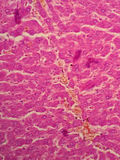 Human liver tissue royalty free stock photos