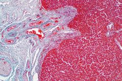 Human liver tissue under the microscope view. Histological for human physiology stock image