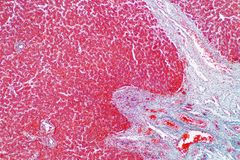 Human liver tissue under the microscope view. Histological for human physiology stock photography