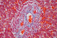 Human liver tissue under the microscope view. Histological for human physiology royalty free stock images