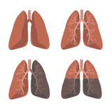 Human Lung Anatomy. Set Vector Royalty Free Stock Image