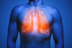 Concept of healthy lungs. stock photo