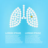Human Lungs With Pills  On A Background Realistic Vector Illustration. Medical concept created by pills. Human Lungs With Medicines  On A Background Realistic Stock Photography