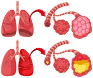 Human lungs with pneumonia Stock Photography