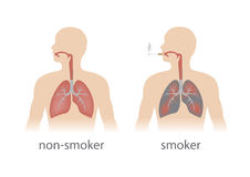 Human lungs. Smoker and non smoker lungs comparison. vector format royalty free illustration