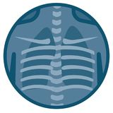 Human Lungs xray Royalty Free Stock Photo