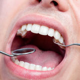 Human male mouth showing teeth with dental hatchet and mouth mir Stock Images