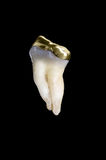 Human molar tooth. A 45 year old human molar tooth with a gold crown isolated on black Stock Image