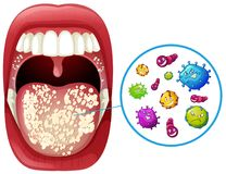 A Human Mouth Virus Infection. Illustration Royalty Free Stock Images