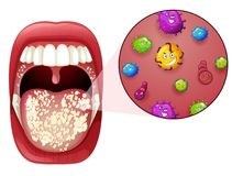 A Human Mouth Virus Infection. Illustration Royalty Free Stock Photo