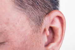 Human mutation with extra growth on ear. Since birth Stock Photography