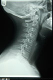 Human neck x-ray. Side view of human neck x-ray viewed from left hand side showing cervical spine and lateral neck Stock Images