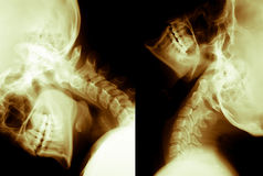 Human Neck Xray. X Ray,Lateral View,Neck and Head Region Stock Photo